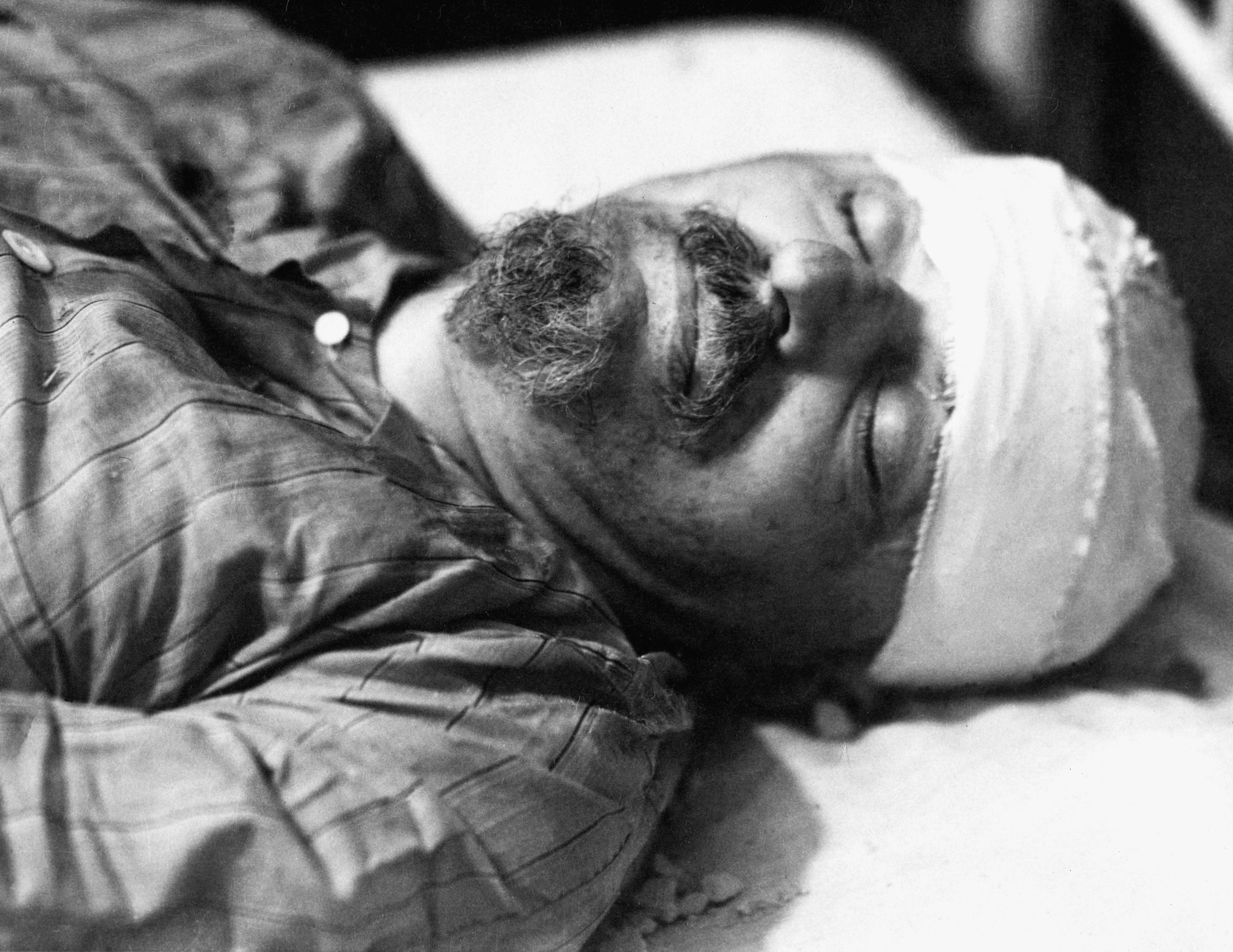 Russian revolutionary Leon Trotsky (1879 - 1940) dies in hospital in Mexico City, 20th August 1940. He had been attacked by NKVD agent Ramon Mercader with an ice axe, and died the next day. (Photo by Enrique Diaz/Galerie Bilderwelt/Getty Images)